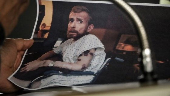 La foto que le dio rostro al sida — Leo Barizzoni — No Toquen Nada | El Espectador 810